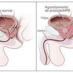 Próstata grande | Tratamiento | Evidencia científica