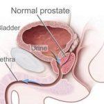 Síntomas de próstata y Ejercicios de Kegel
